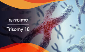 טריזומיה 18: מה זה ומתי אפשר לקבוע רשלנות רפואית?